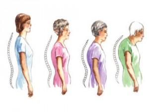 Osteoporosis vertebral