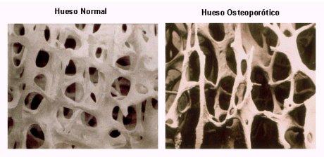 Osteoporosis DELGADOTRAUMA