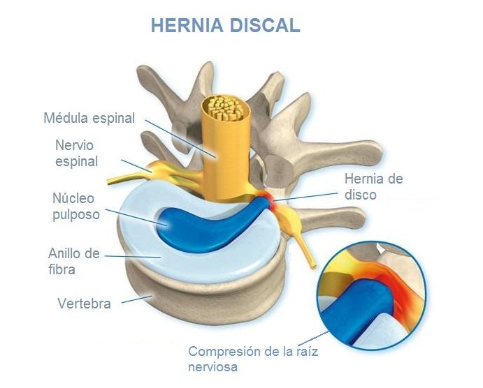 hernia de disco lumbar: